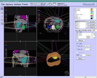 Planning software / simulation / for radiation therapy / medical RTPS Neusoft Medical Systems