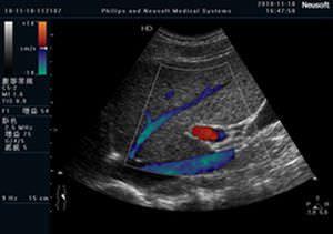 Ultrasound system / on platform / for multipurpose ultrasound imaging FLYING Neusoft Medical Systems