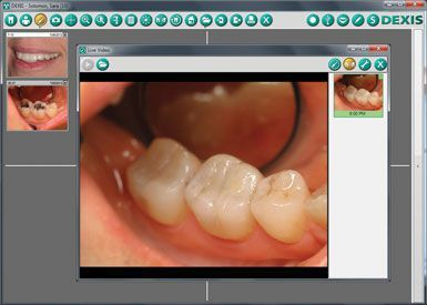 Diagnostic software / treatment plan evaluation / for dental imaging DEXIS DEXIS