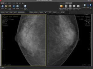 Diagnostic software / viewing / for mammography / medical Mammo PACSPLUS