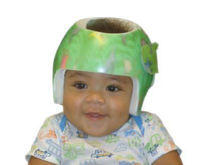 Cranial orthosis (orthopedic immobilization) / pediatric Boston Band Boston Brace