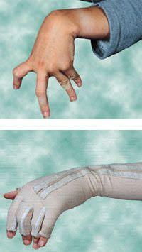 Pediatric orthopedic glove Dynamic Lycra Boston Brace