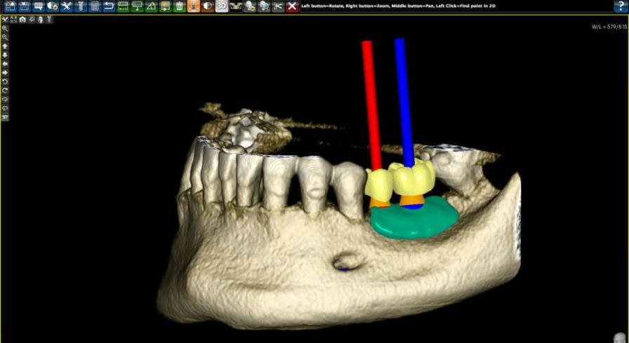 CAD software / for dental prosthesis design / medical PlastyCAD 3DIEMME