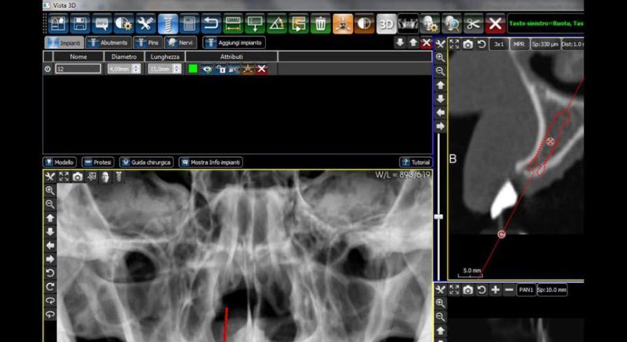3D simulation software / 3D viewing / diagnostic / medical imaging 3Diagnosys® 3DIEMME