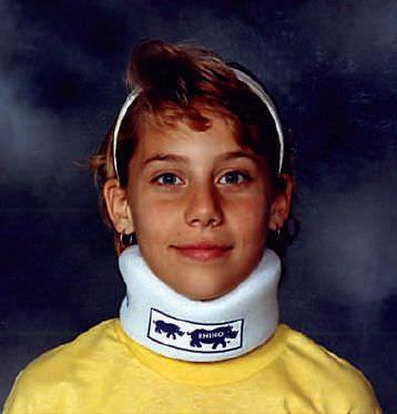 Pediatric cervical collar / foam / C1 RHINO Pediatric Orthopedic Designs, Inc.
