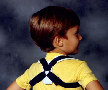 Clavicle orthosis (orthopedic immobilization) / pediatric RHINO Pediatric Orthopedic Designs, Inc.