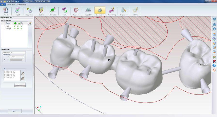 Dental prosthesis design software / CAM / CAD / medical WorkNC® Dental WorkNC