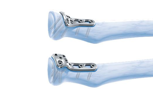 Radial head compression bone plate / radius / proximal LCP™ Depuy Synthes