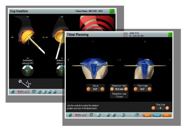 Preoperative planning software / medical / orthopedic surgery Ci™ Depuy Synthes