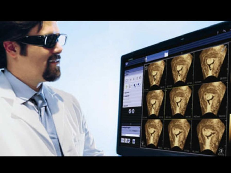 Diagnostic software / viewing / medical imaging / medical syngo®.fourSight™ Siemens Healthcare