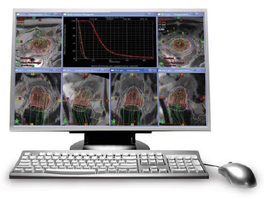 Viewing software / medical / for PACS BrachyVision™ Varian Medical Systems
