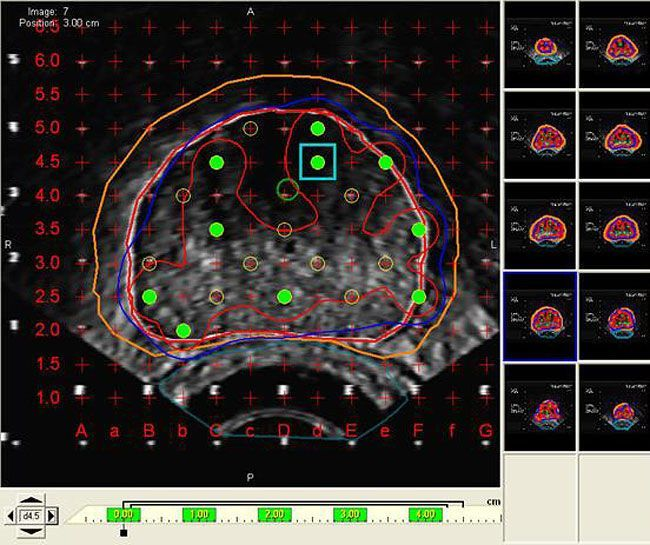Planning software / medical / for brachytherapy VariSeed™ Varian Medical Systems