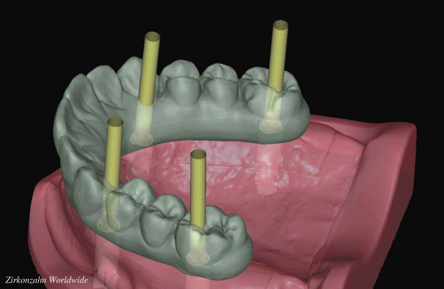 CAD software / CAM / dental laboratory / for implantology Zirkonzahn