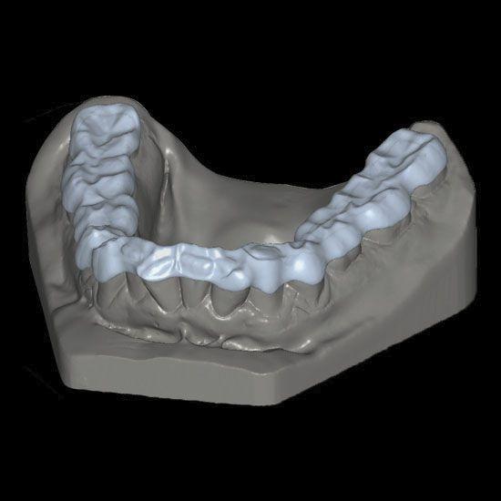 Dental prosthesis design software / CAM / CAD / medical BITE SPLINTS Zirkonzahn