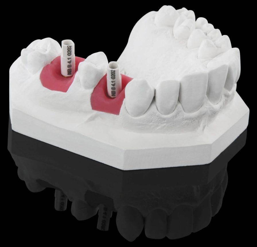 Intra-oral scanbody Zirkonzahn