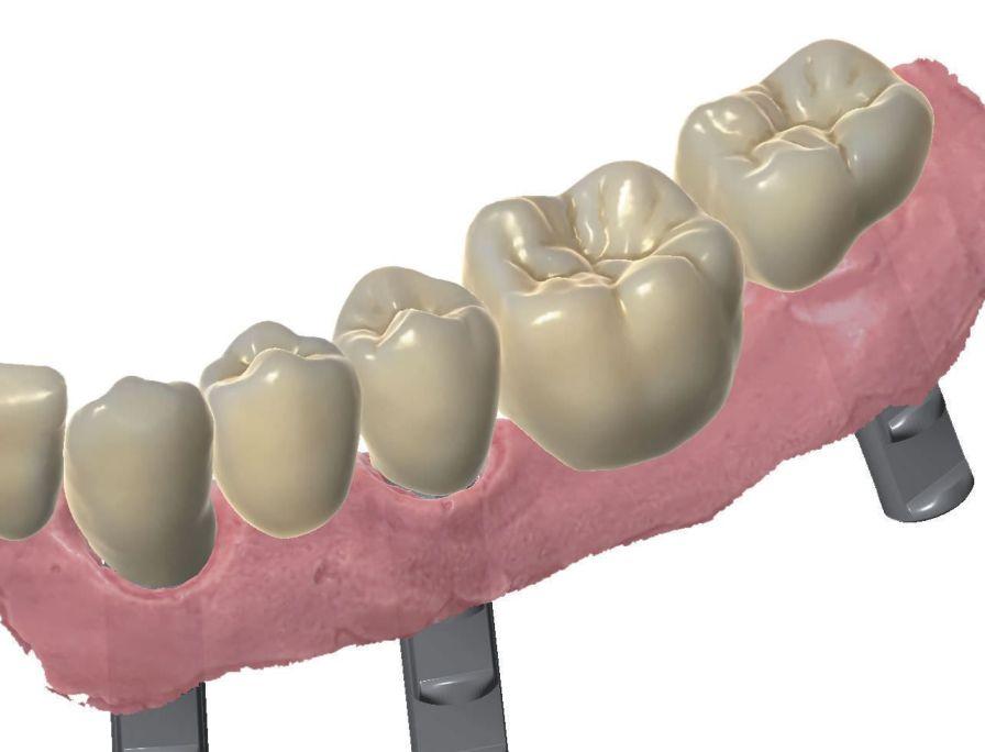 Dental prosthesis design software / CAD / CAM / dental laboratory SY0320 Zirkonzahn