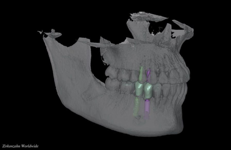 CAD software module / DICOM viewing / CAM / dental Zirkonzahn