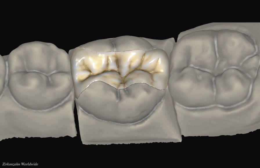 Dental prosthesis design software / CAM / CAD / dental laboratory Inlays/Onlays Zirkonzahn