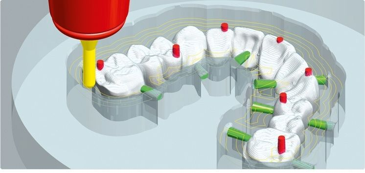 Prosthesis fabrication software / CAM / medical / dental Zfx