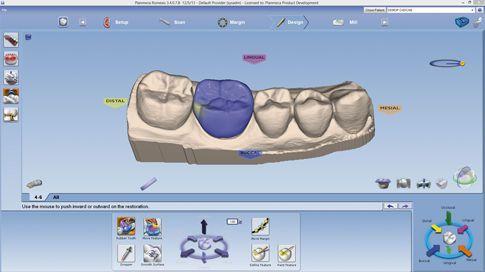 CAD software / CAM / for dental prosthesis design / medical Planmeca PlanCAD® Planmeca