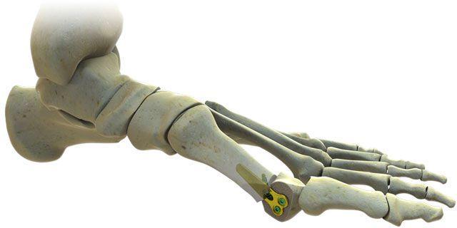 Metatarsal bones osteotomy plate / distal ISO™ Tornier