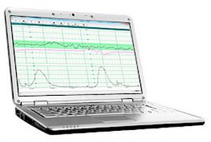 Analysis software / medical / EMR Fetal2EMR™ Wallach Surgical Devices