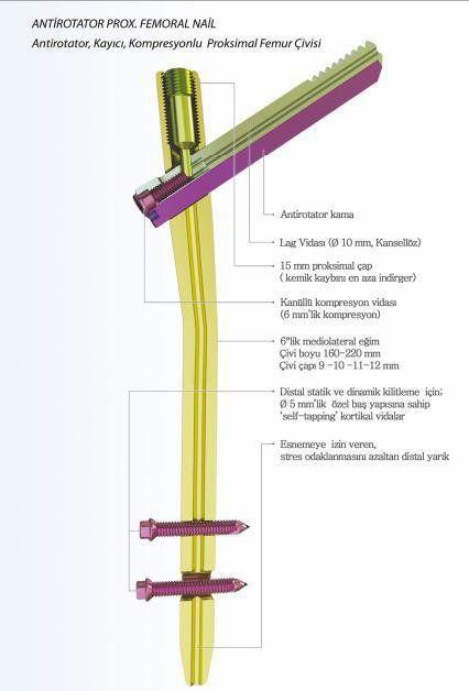 Human intramedullary nail / femur A-PFN TST R. Medical Devices