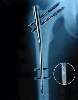 Human intramedullary nail / femur / proximal PROFIN TST R. Medical Devices