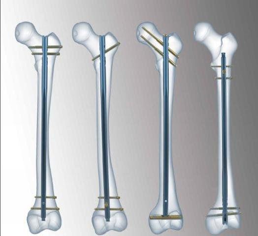 Human intramedullary nail / femur FIN TST R. Medical Devices