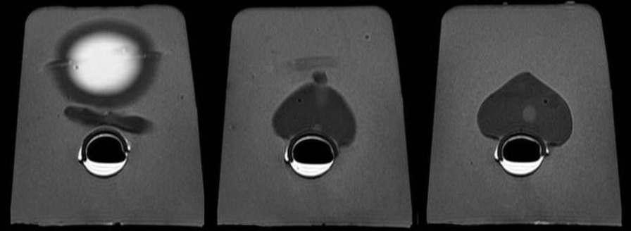 CT scan test phantom / for ultrasound imaging / prostate Yezitronix