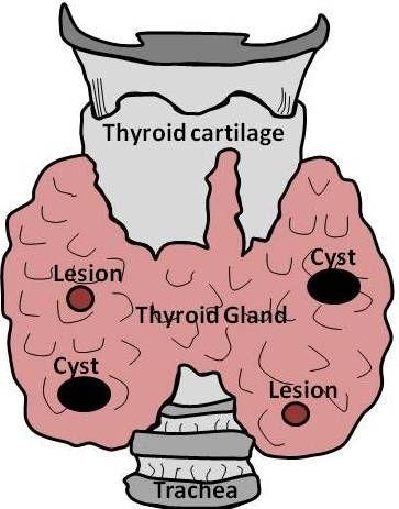 Ultrasound imaging test phantom / thyroid Yezitronix
