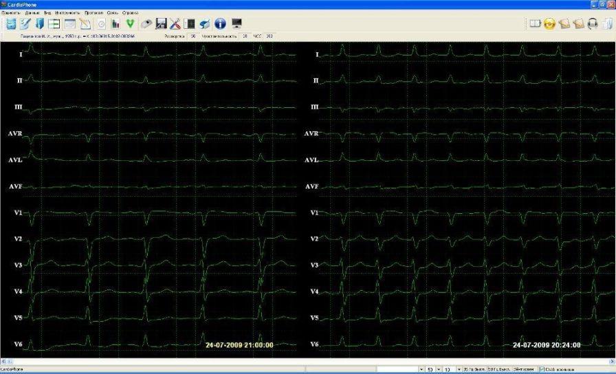 Patient data management system / ECG UNET UTAS