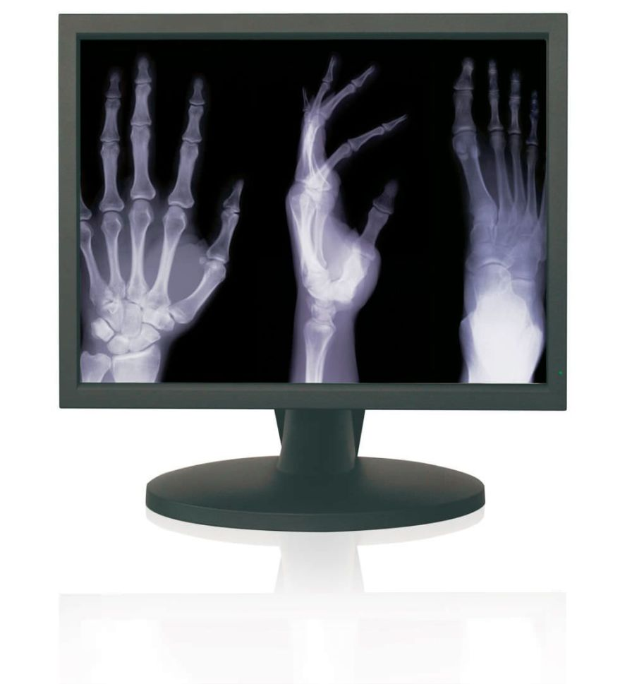 """LCD display / high-definition / medical 21.3"""" 