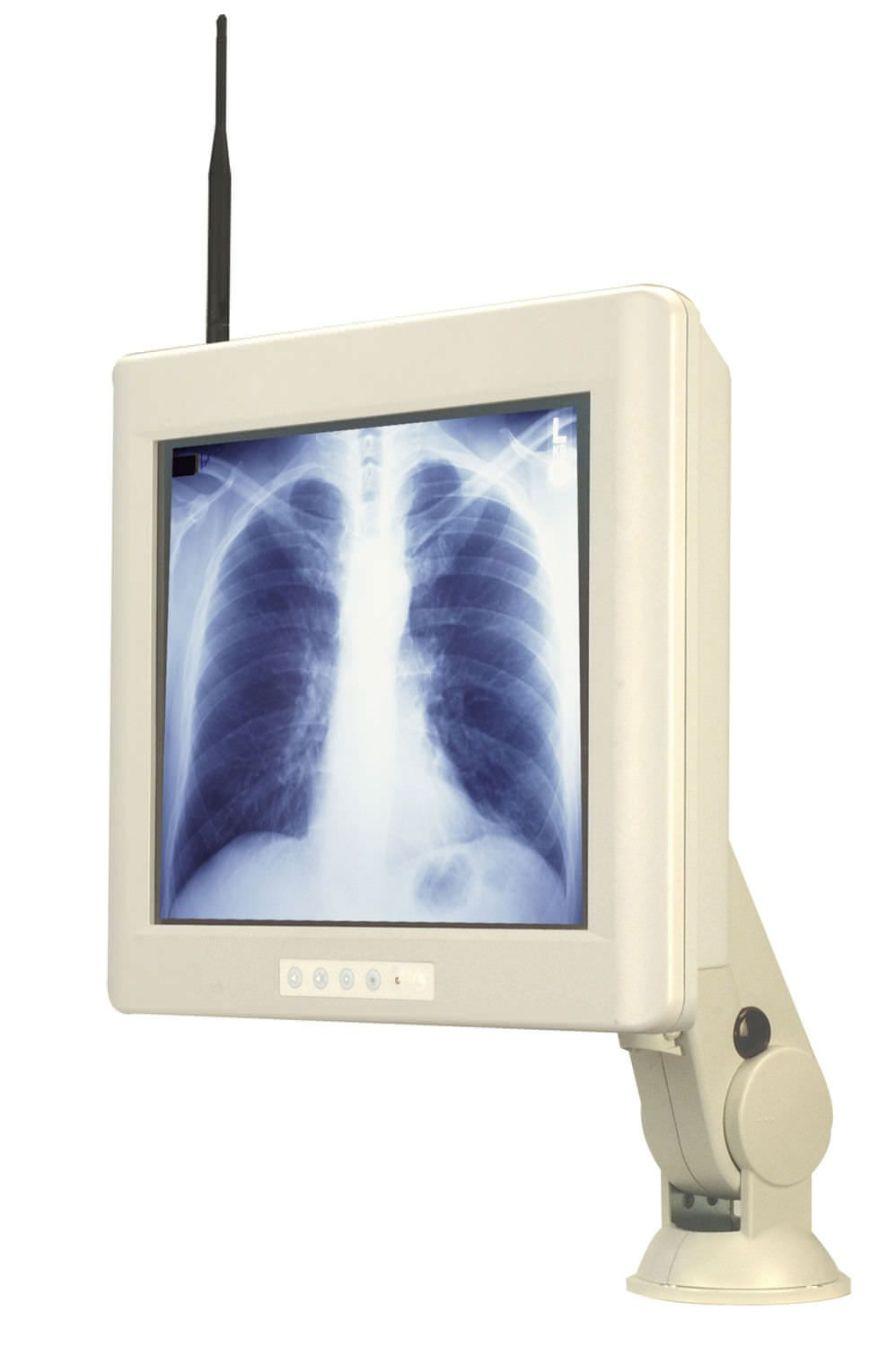 "Medical panel PC 17"", Celeron M - Pentium M, 1 - 1.8 GHz | MED-PPC TCI"