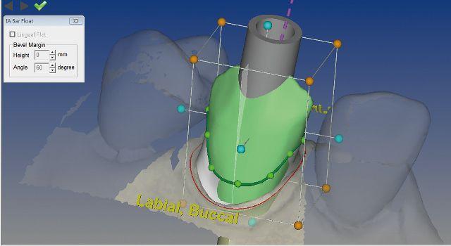 CAD software / for dental prosthesis design / medical TDS Designer TDS Biotechnology Co., Ltd.