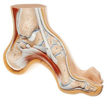 Foot pathology anatomical model NS 3 SOMSO