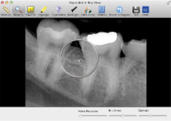 Data management software / image capture / for dental imaging SuniMac Suni Medical Imaging