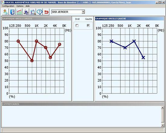 Audiometry software W50 SIBEL, S.A.