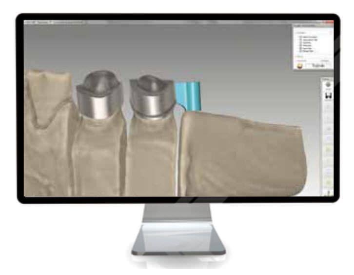 CAD software / dental laboratory Tizian Creativ RT Schütz Dental GmbH