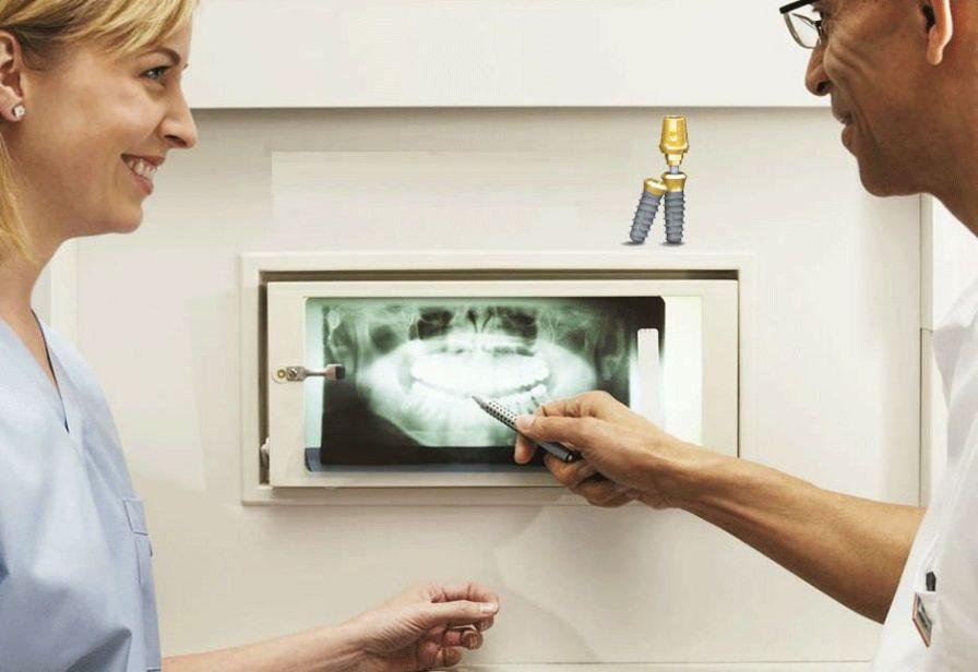 Cylindrical conical dental implant / internal octagon EXFEEL MEGAGEN IMPLANT Co., Ltd.