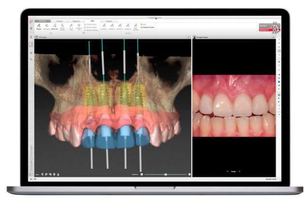 Dental implant simulation software / preoperative planning / for dental surgery / dentist office NobelGuide® Nobel Biocare Services AG
