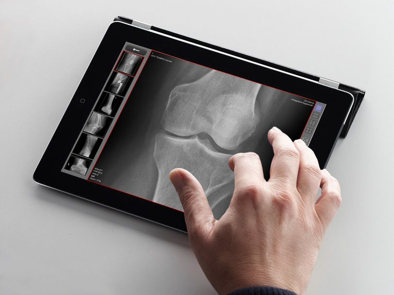 Sharing web application / viewing / medical imaging dicomPACS® MobileView OR Technology - Oehm und Rehbein