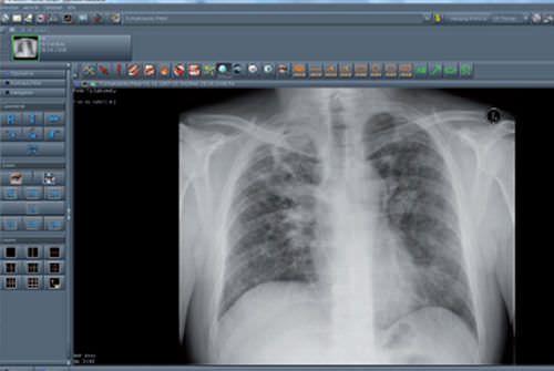 Viewing software / medical / for PACS NEXUS / PACS Nexus AG