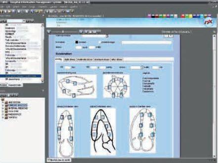 Cardiology information system (CIS) Nexus AG