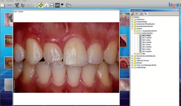 Viewing software / medical / for dental imaging byzz orangedental