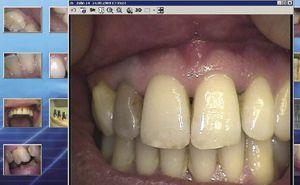 Digital video camera / intra-oral c-on nxt orangedental