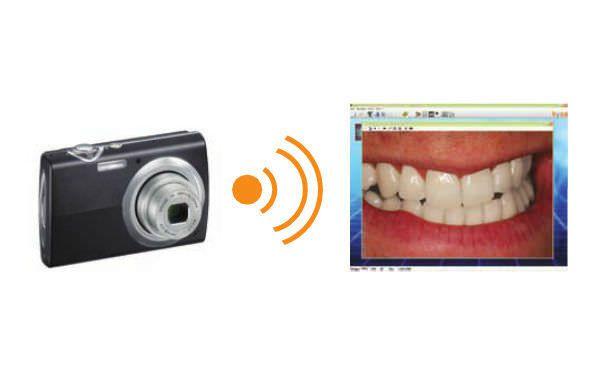 Dental imaging iOS application ibyzz orangedental