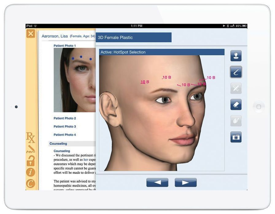 Facial modeling software / for reconstructive surgery / for plastic surgery Nextech