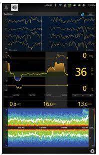 EEG patient monitor / anesthesia SedLine® Masimo