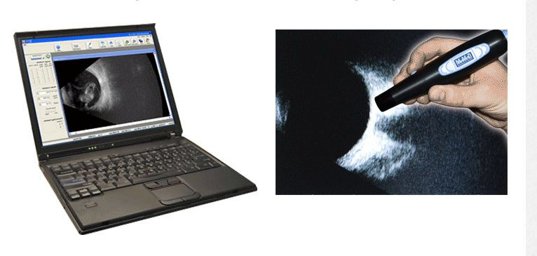 Hand-held ultrasound system / for ophthalmic ultrasound imaging / all-in-one probe MOBILE B-SCAN Micro Medical Devices